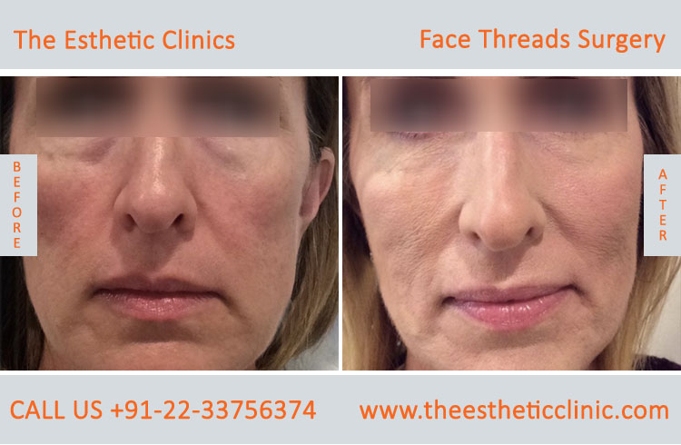 thread facelift, face lifting with threads treatment before after photos in mumbai india (4)