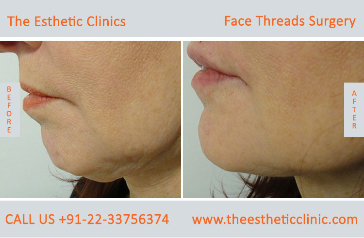 thread facelift, face lifting with threads treatment before after photos in mumbai india (5)