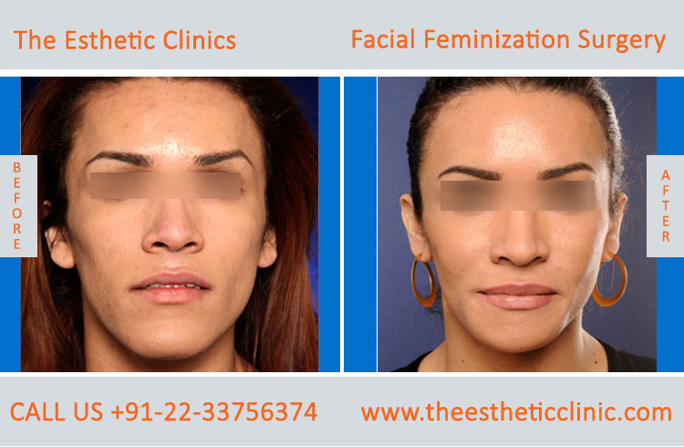 Facial Feminization Surgery before after photos in mumbai india (1)
