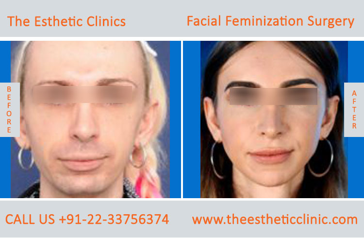 Facial Feminization Surgery before after photos in mumbai india (2)