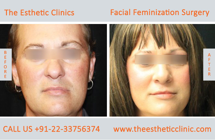 Facial Feminization Surgery before after photos in mumbai india (4)