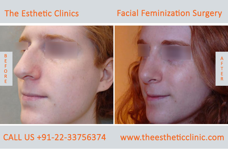 Facial Feminization Surgery before after photos in mumbai india (5)