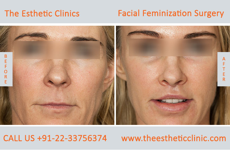 Facial Feminization Surgery before after photos in mumbai india (6)