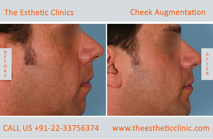 Cheek Augmentation, Cheek Implants surgery before after photos in mumbai india (3)