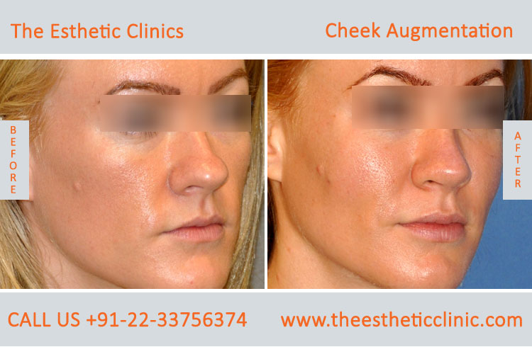 Cheek Augmentation, Cheek Implants surgery before after photos in mumbai india (4)