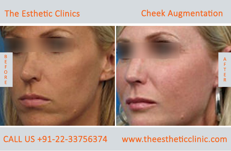 Cheek Augmentation, Cheek Implants surgery before after photos in mumbai india (5)