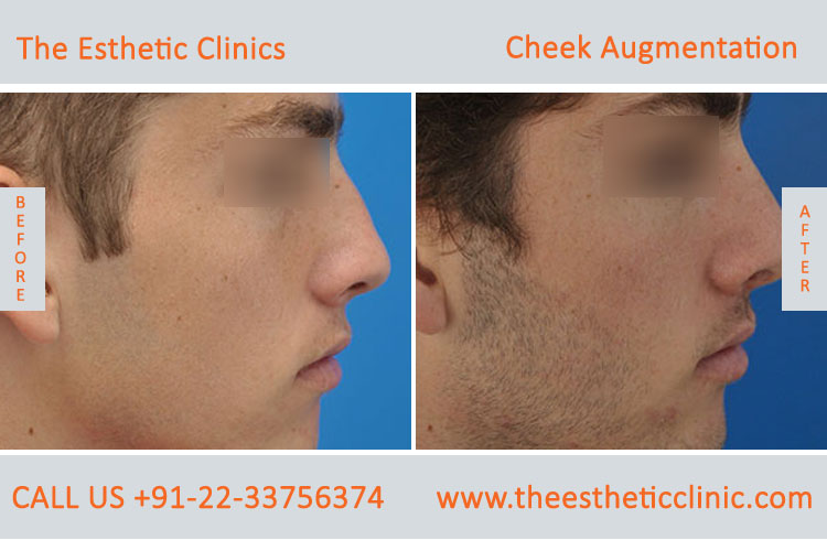 Cheek Augmentation, Cheek Implants surgery before after photos in mumbai india (6)