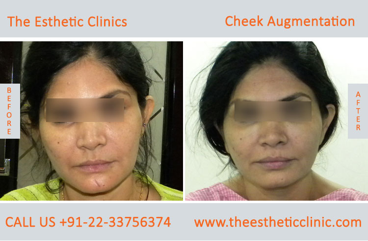 Cheek Augmentation, Cheek Implants surgery before after photos in mumbai india (7)