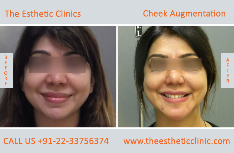 Cheek Augmentation, Cheek Implants surgery before after photos in mumbai india (8)