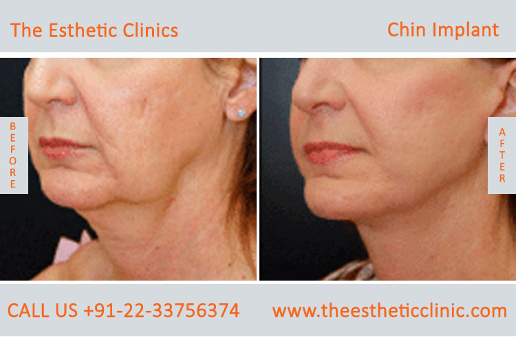 chin Augmentation, chin Implants surgery before after photos in mumbai india (1)