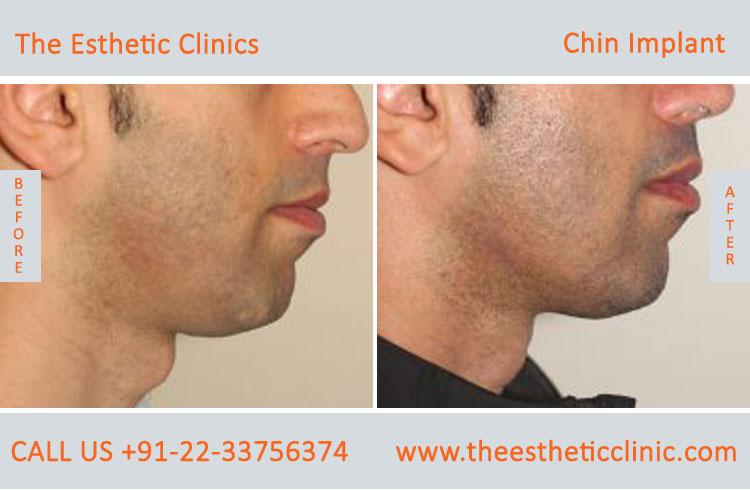Chin Implant Surgery Mumbai, Best Chin implant Surgeon in