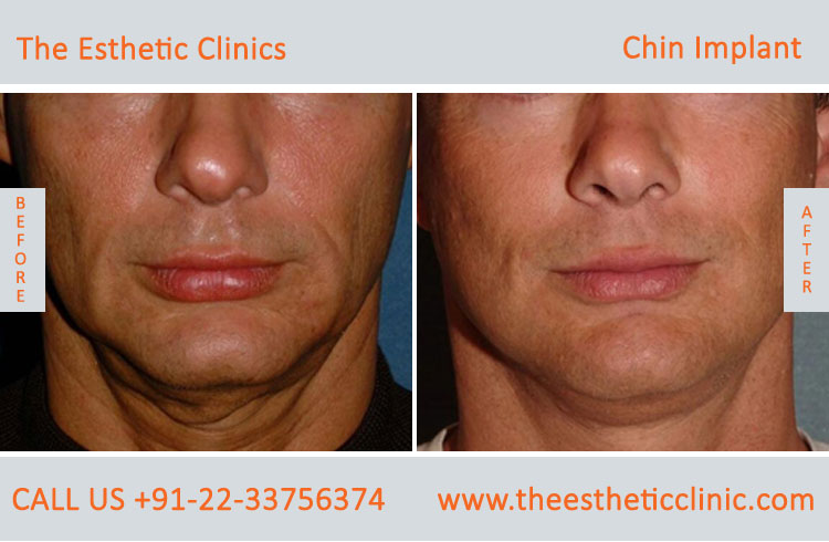 chin Augmentation, chin Implants surgery before after photos in mumbai india (3)