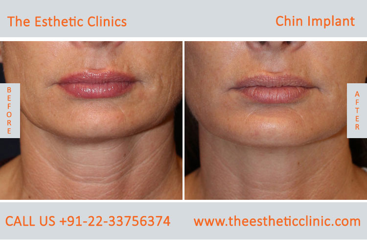chin Augmentation, chin Implants surgery before after photos in mumbai india (5)