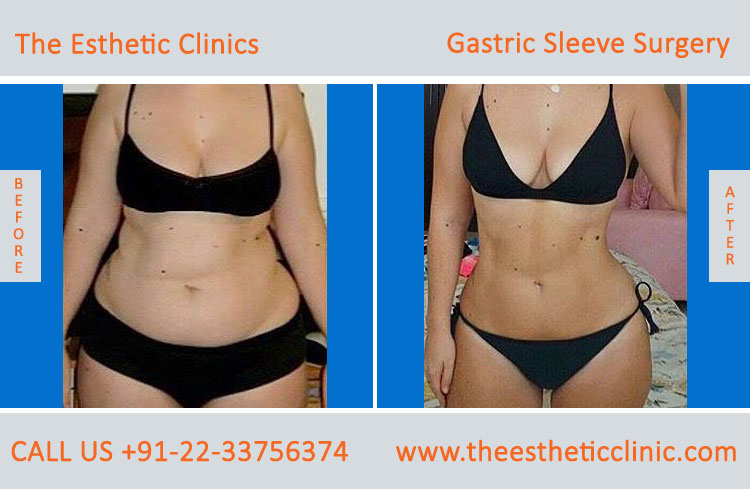 Gastric Sleeve Surgery, bariatric surgery before after photos in mumbai india (1)