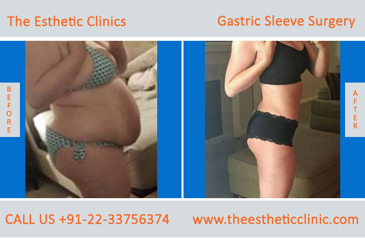 Gastric Sleeve Surgery, bariatric surgery before after photos in mumbai india (3)