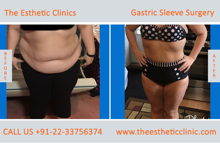 Gastric Sleeve Surgery, bariatric surgery before after photos in mumbai india (4)