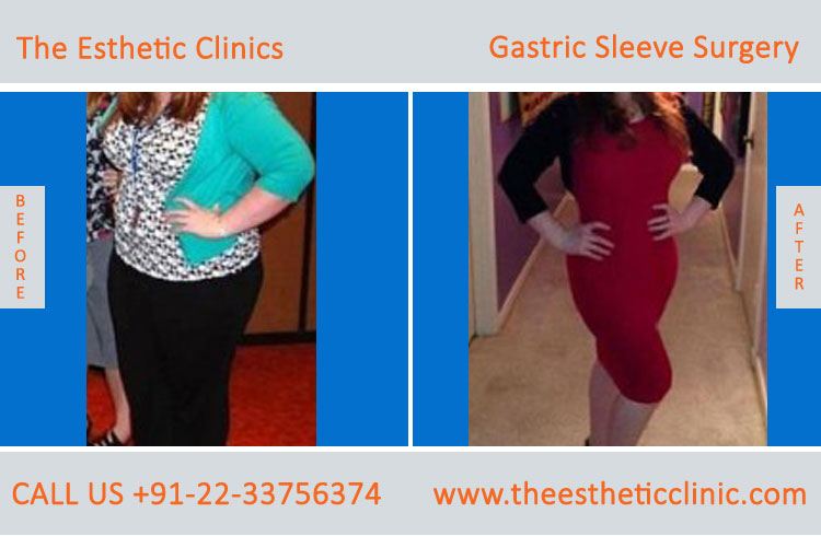 Gastric Sleeve Surgery, bariatric surgery before after photos in mumbai india (5)