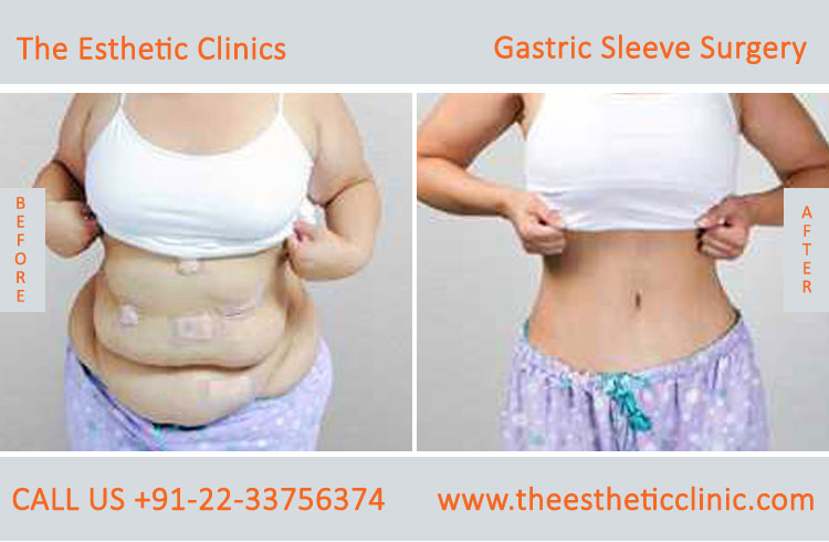 Gastric Sleeve Surgery, bariatric surgery before after photos in mumbai india (6)