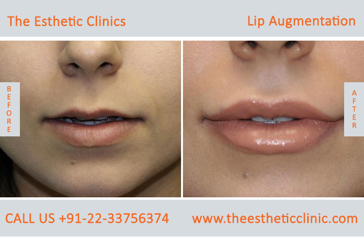 Lip Augmentation, Lip Enlargement, Lip Implant Surgery before after photos in mumbai india (1)