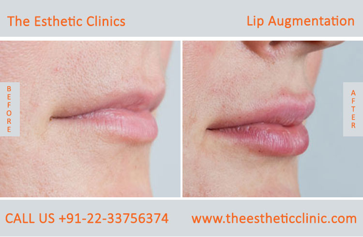 Lip Augmentation, Lip Enlargement, Lip Implant Surgery before after photos in mumbai india (3)