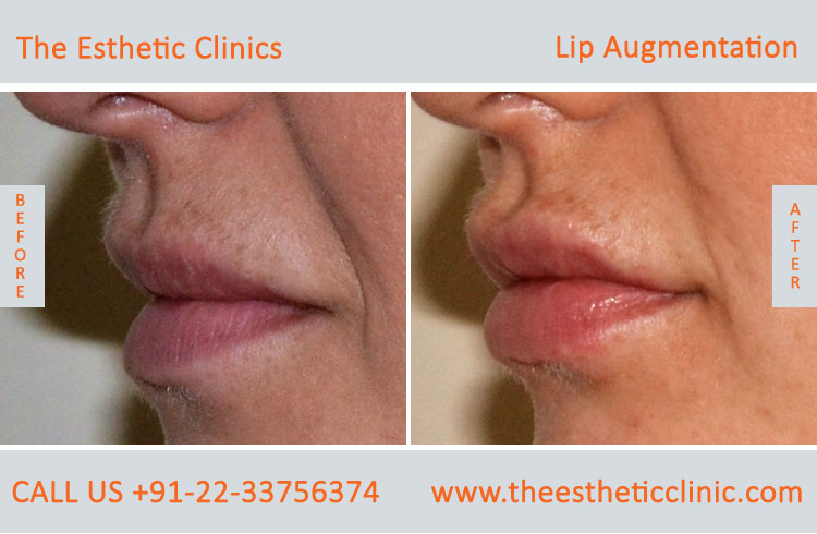 Lip Augmentation, Lip Enlargement, Lip Implant Surgery before after photos in mumbai india (4)