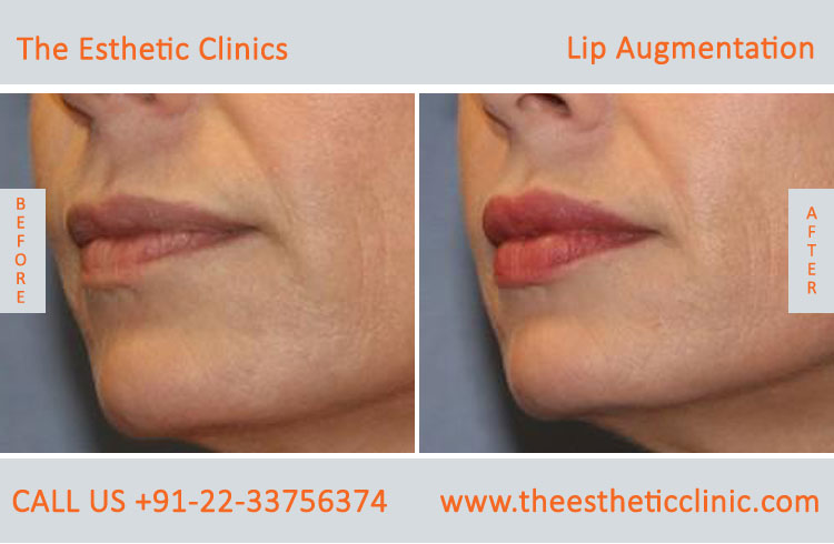 Lip Augmentation, Lip Enlargement, Lip Implant Surgery before after photos in mumbai india (6)