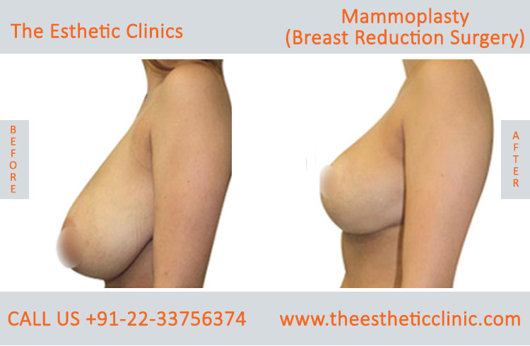 Mammoplasty, Breast Reduction Surgery before after photos in mumbai india (1)