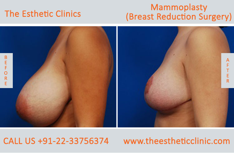 Mammoplasty, Breast Reduction Surgery before after photos in mumbai india (2)