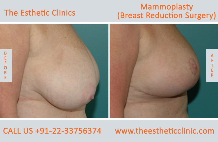 Mammoplasty, Breast Reduction Surgery before after photos in mumbai india (3)