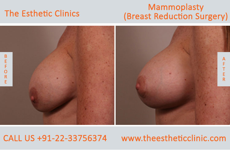 Mammoplasty, Breast Reduction Surgery before after photos in mumbai india (4)