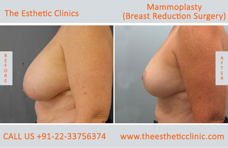 Mammoplasty, Breast Reduction Surgery before after photos in mumbai india (5)