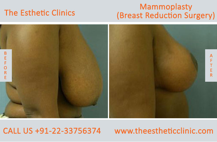 Mammoplasty, Breast Reduction Surgery before after photos in mumbai india (6)