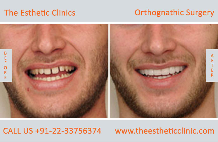 Orthognathic Surgery, Jaw Correction Surgery before after photos in mumbai india (10)