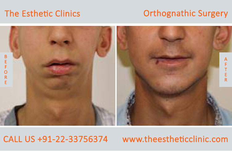 Orthognathic Surgery, Jaw Correction Surgery before after photos in mumbai india (3)