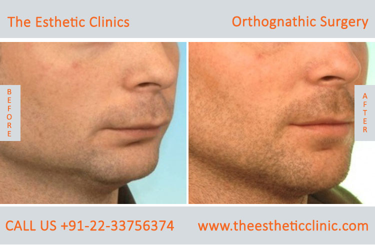 Orthognathic Surgery, Jaw Correction Surgery before after photos in mumbai india (4)
