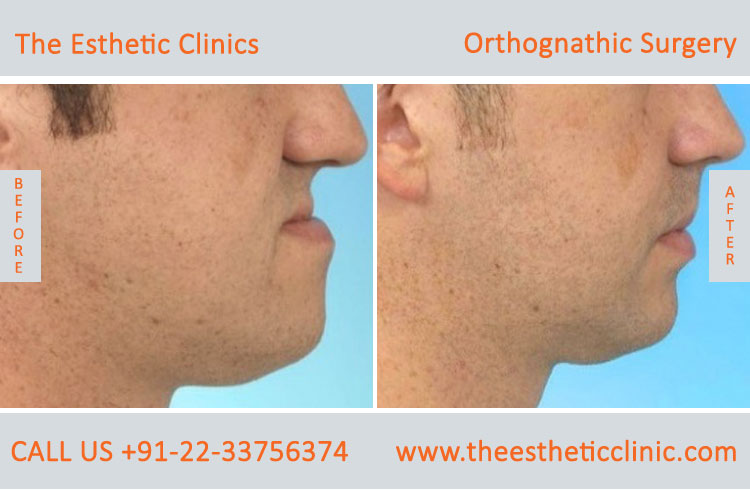 Orthognathic Surgery, Jaw Correction Surgery before after photos in mumbai india (6)