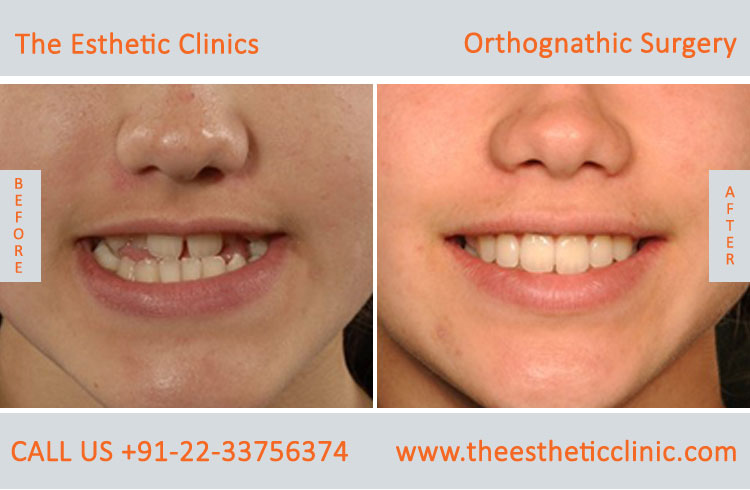 Orthognathic Surgery, Jaw Correction Surgery before after photos in mumbai india (7)