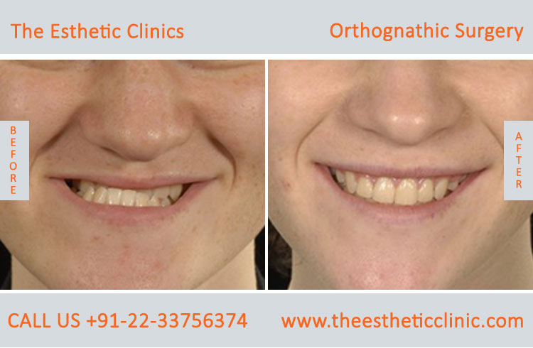 Orthognathic Surgery, Jaw Correction Surgery before after photos in mumbai india (8)