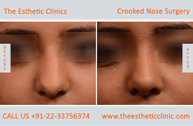 Croocked Nose Surgery in Mumbai India | Nose Reshaping