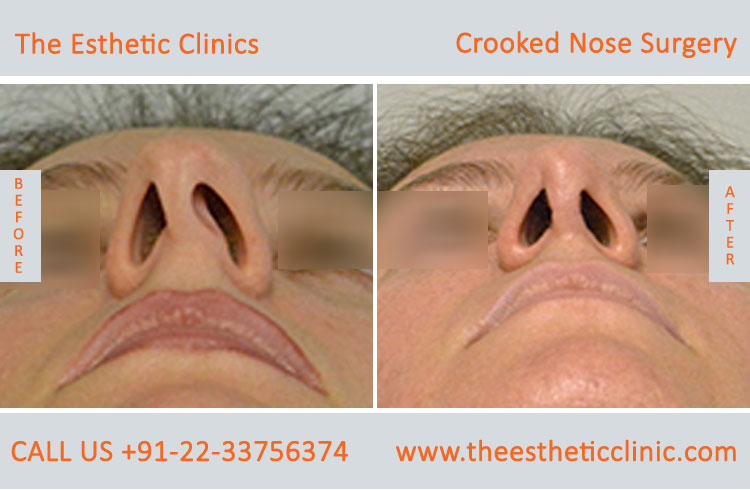 Crooked Nose Surgery before after photos in mumbai india (6)