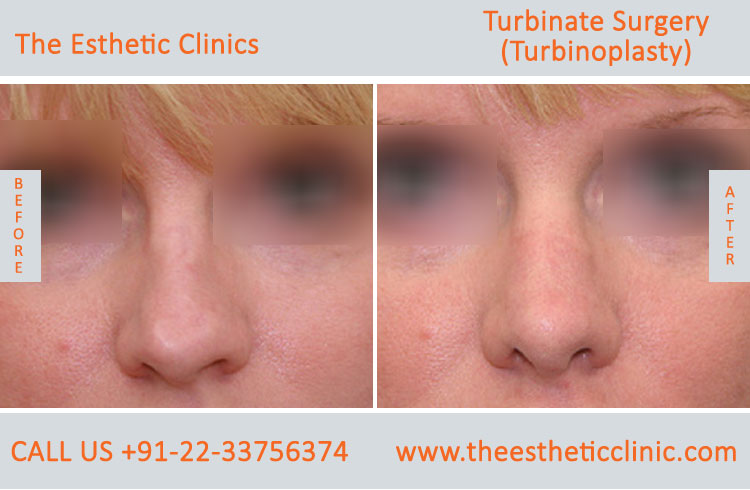 Turbinate Surgery, Turbinoplasty before after photos in mumbai india (3)