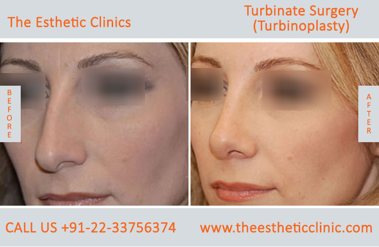 Turbinate Surgery, Turbinoplasty before after photos in mumbai india (5)