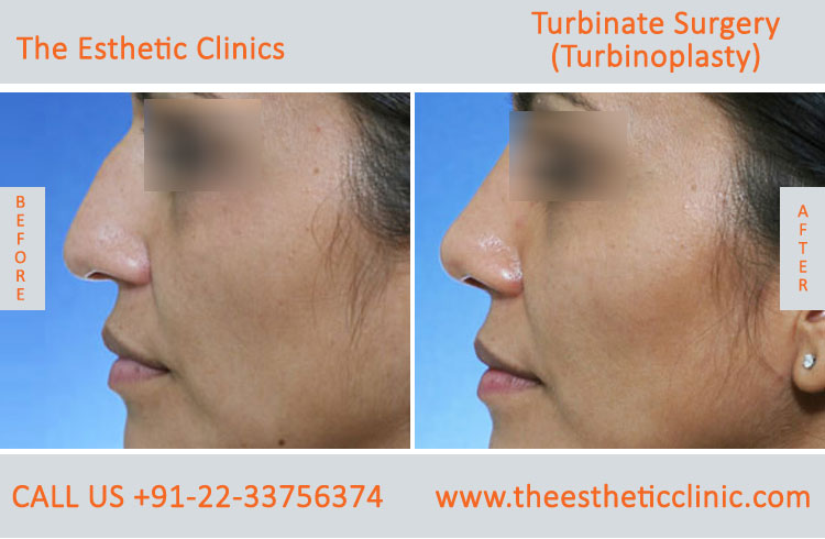 Turbinate Surgery, Turbinoplasty before after photos in mumbai india (6)