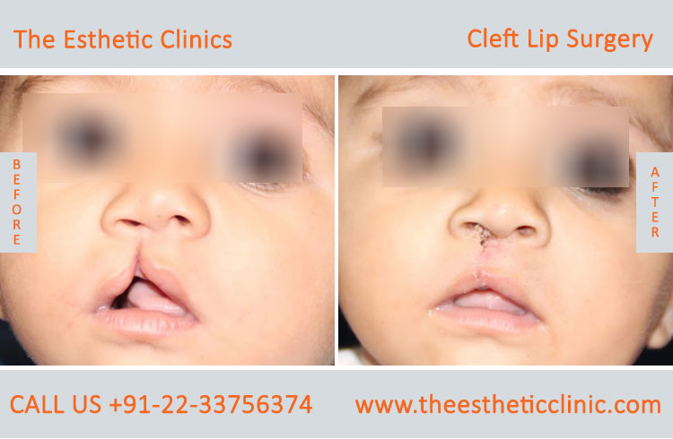 cleft lip surgery, Unilateral Cleft Lip Repair Treatment before after photos in mumbai india (1)