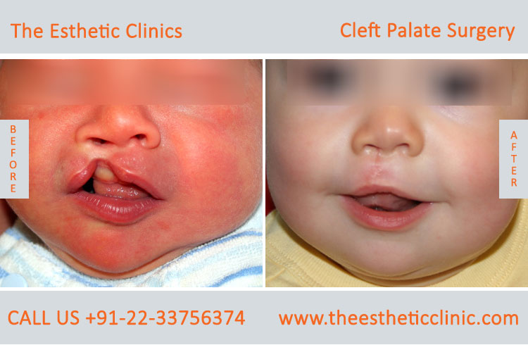cleft palate surgery, Cleft Palate Repair Treatment before after photos in mumbai india (1)