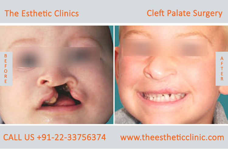 cleft palate surgery, Cleft Palate Repair Treatment before after photos in mumbai india (2)