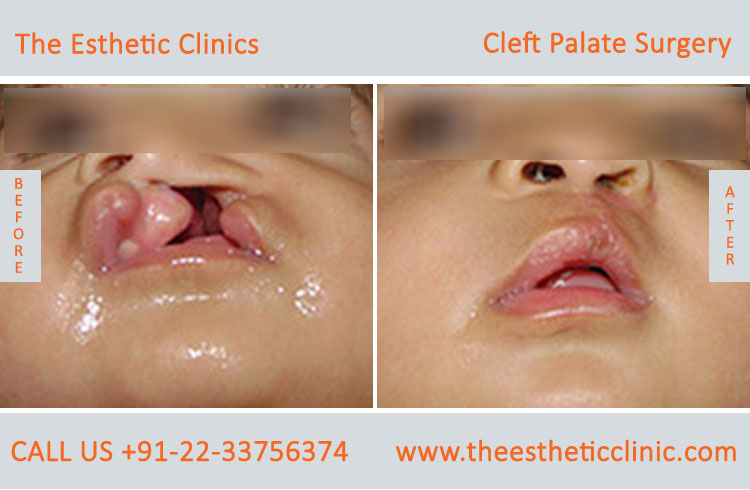 cleft palate surgery, Cleft Palate Repair Treatment before after photos in mumbai india (3)