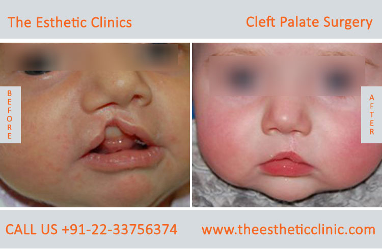 cleft palate surgery, Cleft Palate Repair Treatment before after photos in mumbai india (4)