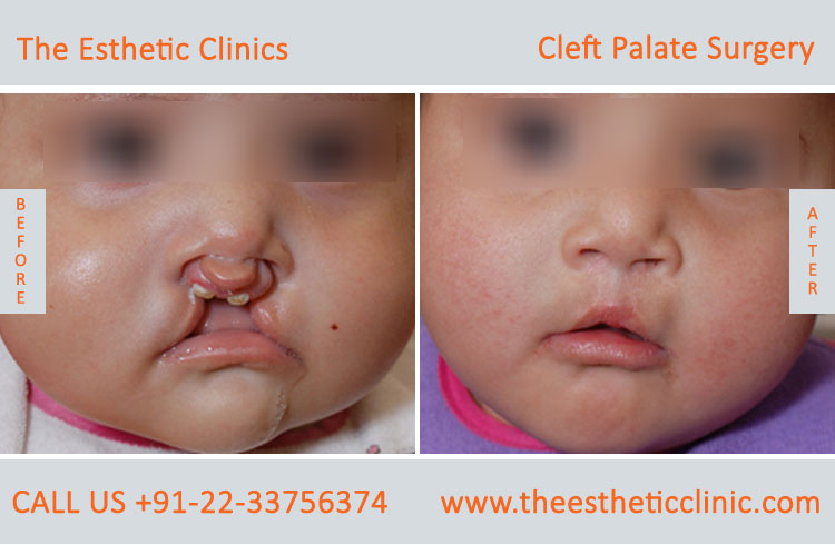cleft palate surgery, Cleft Palate Repair Treatment before after photos in mumbai india (5)