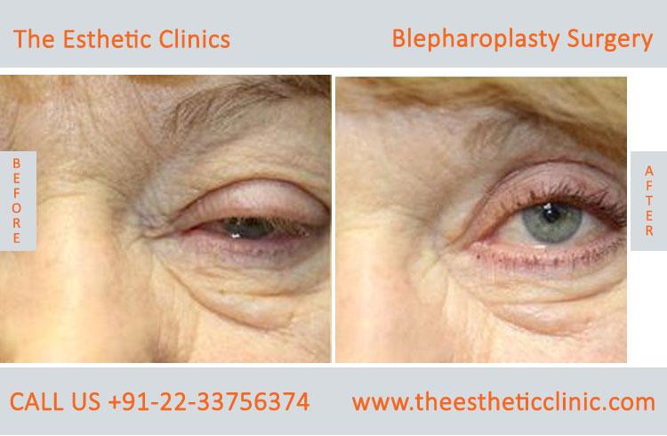 Blepharoplasty Surgery India, best blepharoplasty surgeon Mumbai
